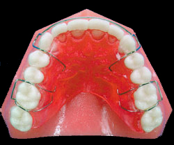Orthodontic Glossary   Campbell Orthodontics   Raleigh, Creedmoor, NC